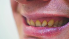 Terrible Male Mouth With Yello...
