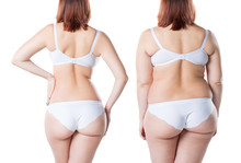 Woman's Body Before And After ...