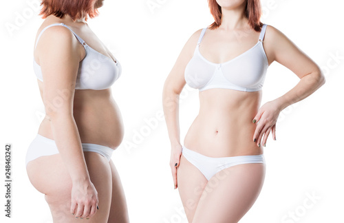 Obraz Woman's body before and after weight loss isolated on white background, plastic surgery concept - fototapety do salonu