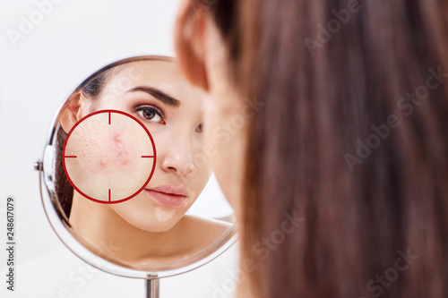Young woman with acne skin in red aim. Canvas Print