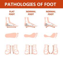 Foot Pathologies Infographic. ...