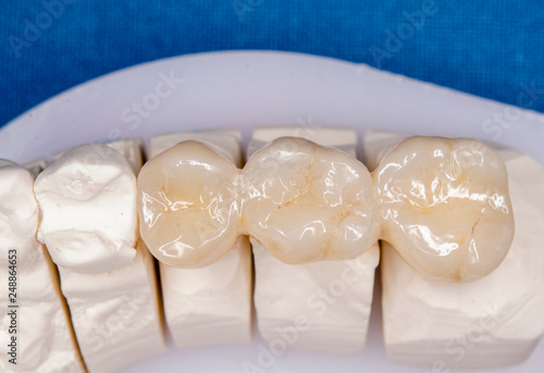 Valokuva  zirconia crowns on a plaster model, ready to be inserted