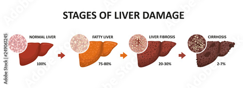Obraz Stages of liver damage. Healthy, fatty, liver fibrosis and cirrhosis. - fototapety do salonu