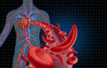 Sickle Cell Cardiovascular