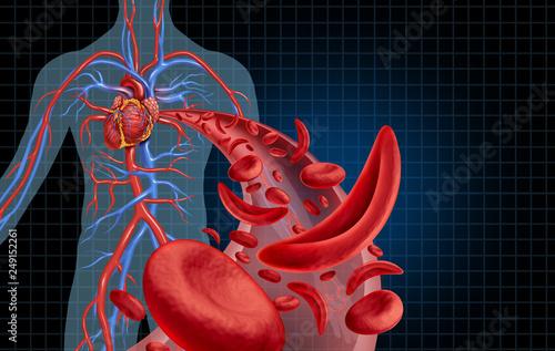 Sickle Cell Cardiovascular Fototapete
