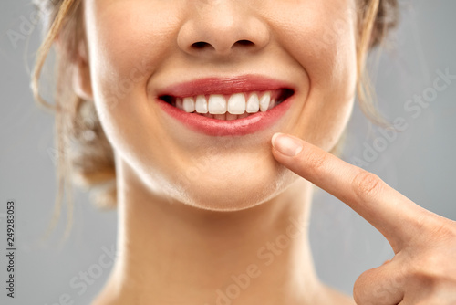 Fotografie, Obraz  oral care, dental hygiene and people concept - close up of finger pointing to wo