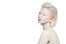Beautiful Albino Girl On White...