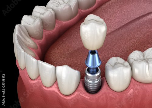 Photo Premolar tooth crown installation over implant abutment