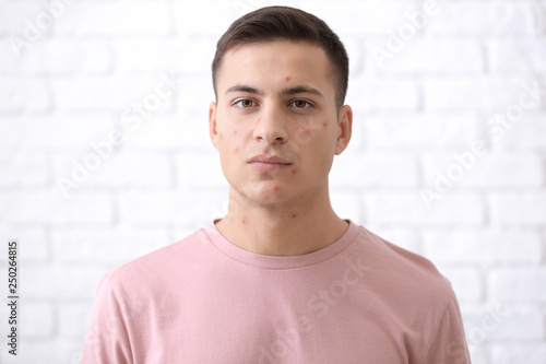 Portrait of young man with acne problem against white brick wall Wallpaper Mural