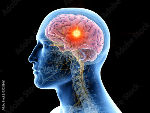 Obraz 3d rendered medically accurate illustration of the human brain and a tumor - fototapety do salonu