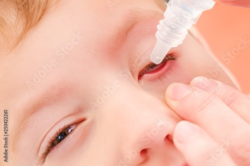 Photo Eye child allergy and conjunctivitis red allergic,  ill inflammation