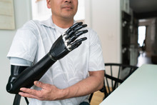 Man Touches Elbow On His Robotic Arm