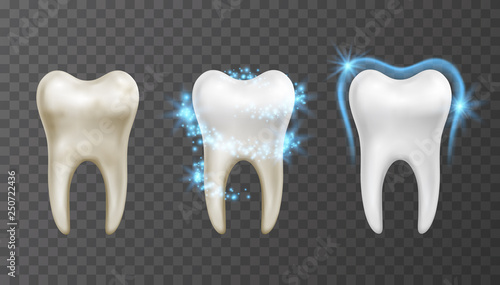 Cuadros en Lienzo Vector illustration of teeth whitening process - cleaning and protection from st