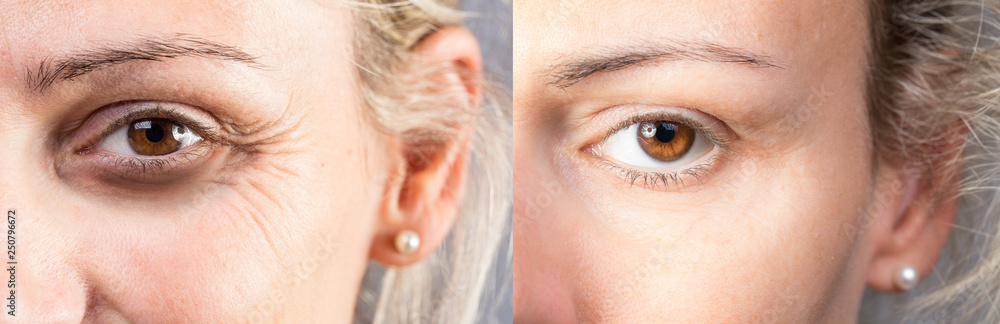 Fototapety, obrazy: Wrinkled eye with dark circles before and after lifting and correction