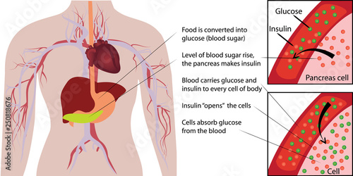 Cuadros en Lienzo  Blood sugar glucose absorbtion in a human body  infographics