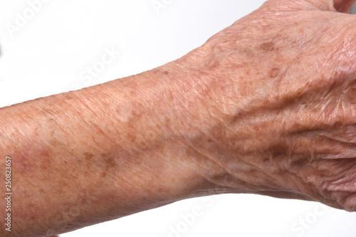 Fotografía  detail of the texture of a senior woman's skin