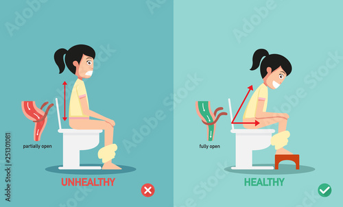 unhealthy vs healthy positions for defecate illustration, vector Fototapet