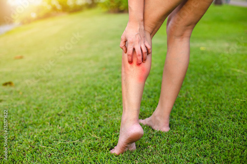 Fototapeta Women with his feet, itching on the lawn caused by insect bites and stings/health and medical view and devising concepts. obraz