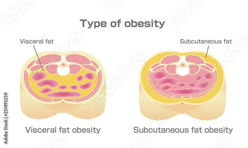 Type of obesity illustration Fototapete