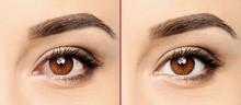 Young Woman, Closeup Of Eyes. ...