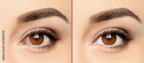 Fotografía Young woman, closeup of eyes. Visiting ophthalmologist