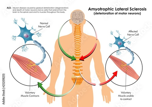 Amyotrophic Lateral Sclerosis Wallpaper Mural
