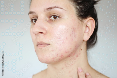 Photo Acne on the face of young women