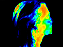 Thermographic Image Of The Right Side Of The Face Of A Woman With The Photo Showing Different Temperature In A Range Of Colors From Blue Showing Cold To Red Showing Hot Which Can Be Joint Inflammation