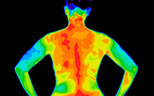 Thermographic Photo Of The Bac...