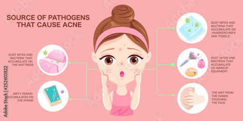 Source of pathogens that cause acne Canvas Print