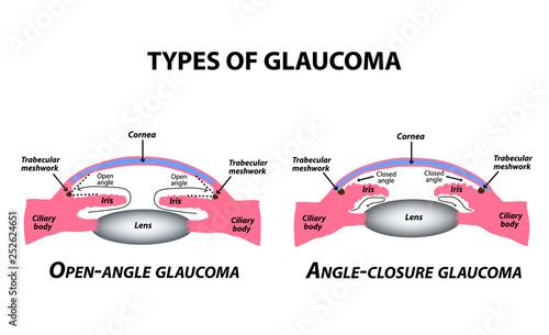 Fényképezés  Types of glaucoma