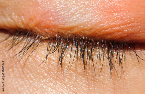close up Blepharitis or Eyelid inflammation eyes healthy concept Canvas Print