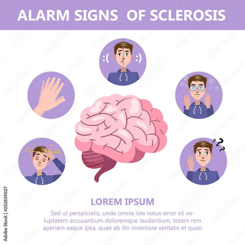 Fototapeta Sclerosis symptoms and signs. Brain damage disease