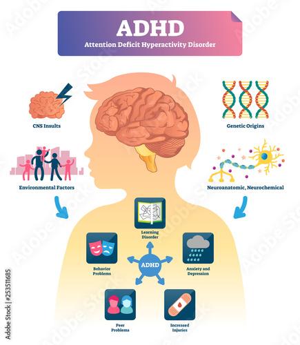 Photo ADHD vector illustration