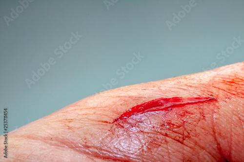 Carta da parati One photo of a series of photos taken of a fresh bleeding cut development over a