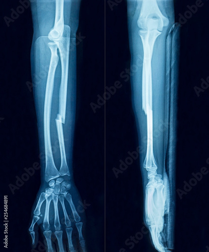 Film x-ray show fracture plate of arm for fix arm's bone Wallpaper Mural
