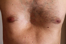 Chest Deformity, Birth Defect....