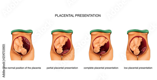 Fotografie, Obraz  placental presentation norm and pathology