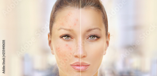 Post-Acne Marks /Treating Acne Scars Wallpaper Mural