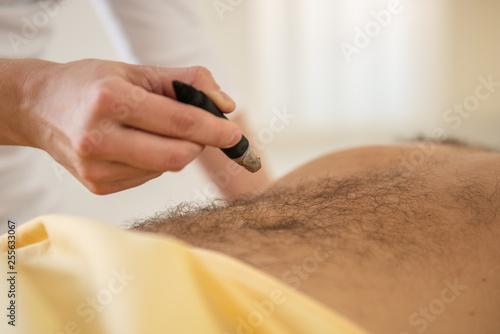 Fotografie, Obraz  moxibustion treatment after injury alternative chinese medicine