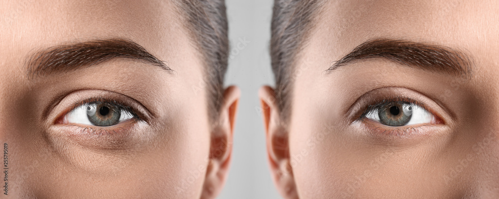 Fototapeta Woman before and after blepharoplasty procedure, closeup. Cosmetic surgery