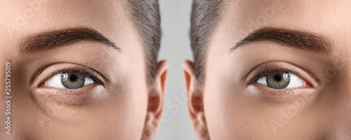 Woman before and after blepharoplasty procedure, closeup Canvas Print
