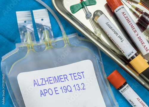 Fotografía  Test of Alzheimer disease through extraction of blood, Recent discovery makes po