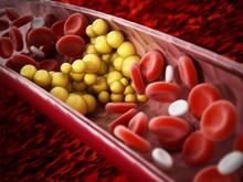 Fat Cells Blocking The Blood Flow Inside Human Vein. 3D Illustration