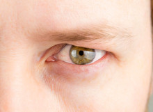 Detail View Of Man Green Eye With Heavy Upper Eyelid. Before Blepharoplasty Surgery To Correct Dermatochalasis Concept.