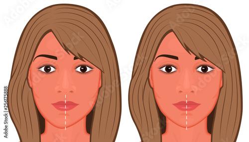 Photo Vector illustration of a Jaw asymmetry correctiom surgery