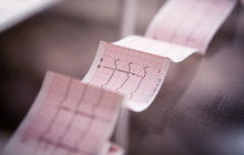 Medical Cardiogram Printed On ...