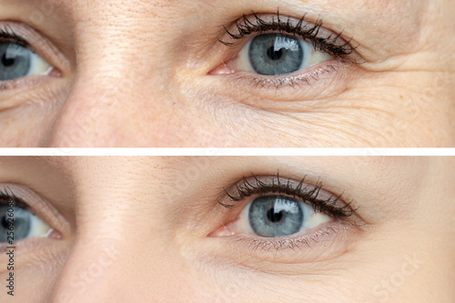 Woman face, eye wrinkles before and after treatment - the result of rejuvenating Canvas Print