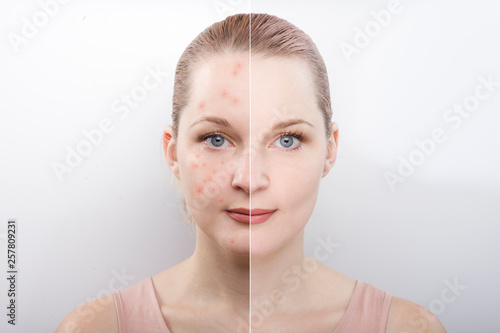 Fototapeta the girl's face before and after. difference after cosmetic procedures. Treatment of skin diseases. causes of acne. cleansing. obraz na płótnie