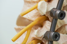 Close-up View Of Human Lumbar Spine Model And Instrumentation Fixation With Rod And Screw